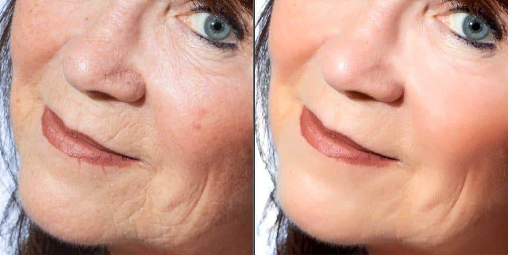 Hudlyster och eliminering av små linjer i ansiktet