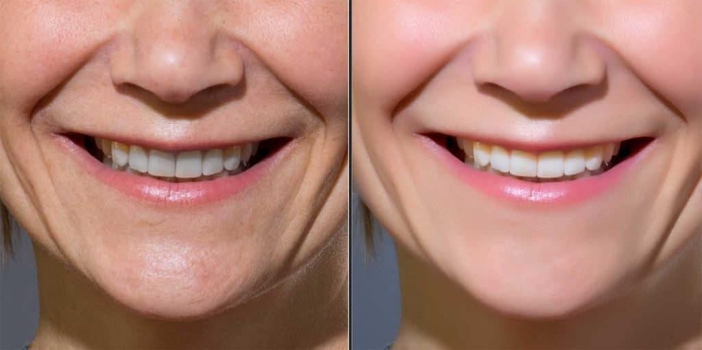 Tänder ska vara vita på din porträttfotografi.